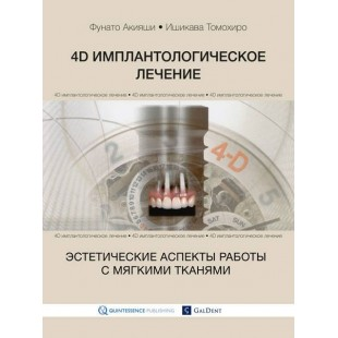 4D имплантологическое лечение:эстетические аспекты работы с мягкими тканями. Фунато Акияши, Ишикава Томохиро.
