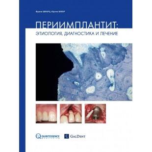 Шварц Ф. Бекер Ю. Периимплантит: этиология, диагностика и лечение.
