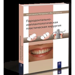 Пародонтально-имплантологическая пластическая хирургия. Петруска М.,Петруски Я.